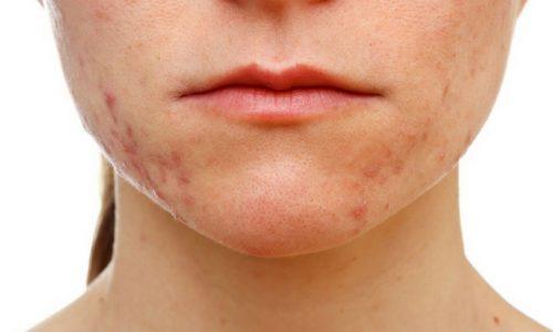stress acne