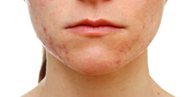 How Stress Causes Acne (And How to Get Rid of it)