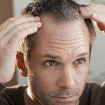 stress hair loss