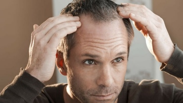 stress hair loss