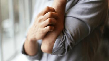 eczema and stress