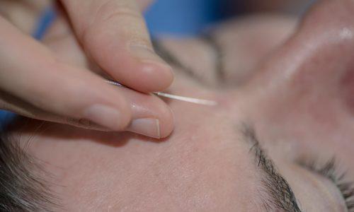 acupuncture benefits